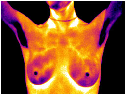 Breast thermography